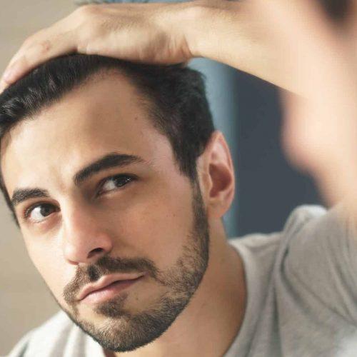زراعة الشعر واللحية